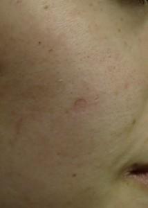 2 SL右頬-治療直後'