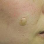 SL右頬-治療後2日目